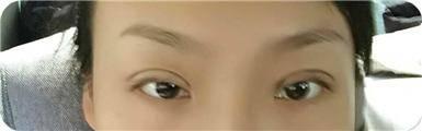 双眼皮的改善