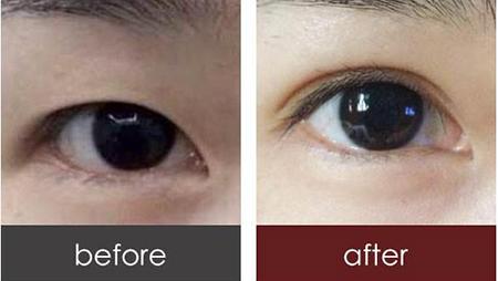 韩式切开双眼皮 重睑同时去皮去脂