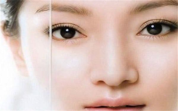 做切开法双眼皮的流程是什么 恢复时间要多久